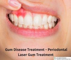 Want to get rid of dental gum disease then take treatment from Dr. Raichel Thomas - famous Dentist in nerul (East) who is running Aesthetic Avenue Dental Clinic Gum Disease Treatment, Dental Check Up, Infection Control, Oral Hygiene, Dental Care, Clinic, Rid, The Cure