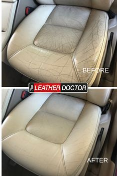 leather car seats eventually crack and experience damage. Our leather doctors are highly skilled in repair techniques that help bring leather back to life. give them a call for a free quote Leather Car Seat Repair, Leather Car Seats, Leather Cleaning, Doctors, Quote, Free, Quotation, Quotes, The Doctor