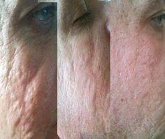 Amazing on Acne Scars..Jeunesse Luminesce serum..Amazing on crows feet and deep lines..