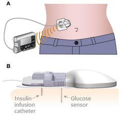 NewsFlash: New Medtronic Device Combines CGM Sensor & Insulin Infusion Site