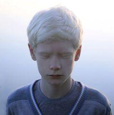 Imagini pentru beautiful albino boy
