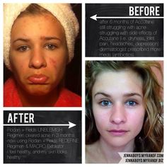 You may recognize JENNA BOYD from The Sisterhood of the Traveling Pants, and other things!  She's fought with her acne for years, and even put her body through 8 months of Accutane. Her mom found R+F's UNBLEMISH about a year ago, and Jenna's acne has since CLEARED up BEAUTIFULLY! So much so, that she BECAME A CONSULTANT! She just JOINED MY TEAM and her BUSINESS is already BOOMING!  http://shelbymanning.myrandf.com <----- shop  http://shelbymanning.myrandf.biz <------ join