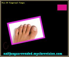 Pics of fingernail fungus - Nail Fungus Remedy. You have nothing to lose! Visit Site Now