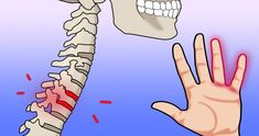 viraI: 10 Causes for Hand Numbness That Scream You Need to See a Doctor Tendonitis Causes, Numbness In Hands, Massage Relaxant, Shoulder Tension, Degenerative Disc Disease, Diabetic Neuropathy, 8th Sign, Create Words, Facial Treatment