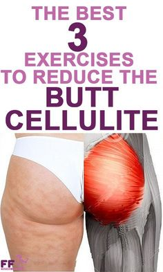Get the best workout for cellulite using butt exercises and leg exercises to reduce lumps and dimples and lose weight fast.