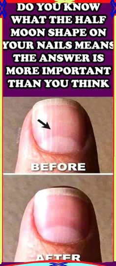 DO YOU KNOW WHAT THE HALF MOON SHAPE ON YOUR NAILS MEANS THE ANSWER IS MORE IMPORTANT THAN YOU THINK!