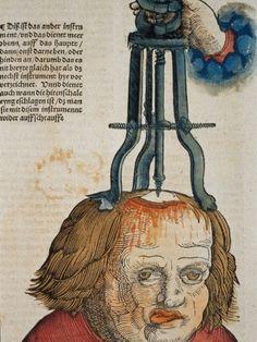 Feldtbüch der Wundartzney (1517) by Hans von Gersdorff an early representation of trepanning.
