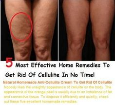 Remove Cellulite: 5 Effective Home Remedies To Get Rid Of Cellulite At Home, How To Get Rid Of Cellulite, Easy Cellulite Treatments, Cellulite is a condition in which the skin appears to have areas with underlying fat deposits, giving it a dimpled, lumpy appearance. It is most noticeable on arms and thighs, and usually occurs after puberty.
