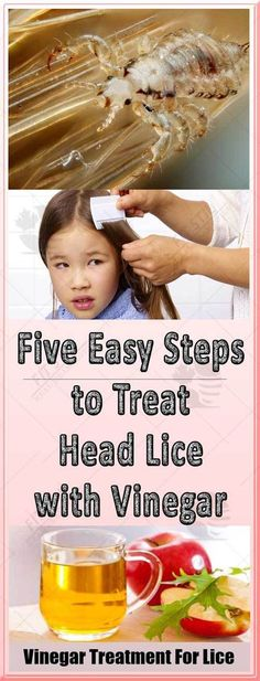 Head lice ar very little insects that survive the human scalp and go after blood.Lice will crawl however cannot fly, so that they unfold from person to person via terribly shut contact. this is often why kids ar most affected, as a result of they have an inclination to play close. In fact,...
