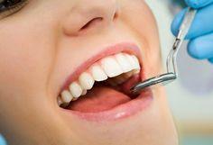 ¡Combate las caries! Bs. 600 en vez de Bs. 1000 por 5 obsturaciones de resina en Dental Clinic