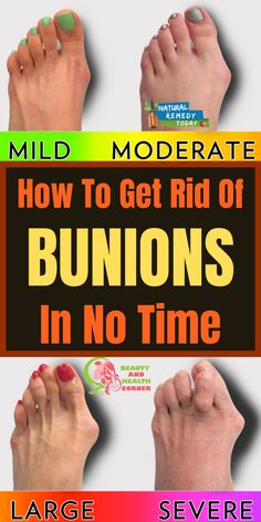 Healthy Skin Care, Healthy Tips, Natural Health Remedies, Home Remedies, Bunion Remedies, Get Rid Of Bunions, Types Of Arthritis, Bone And Joint, Health And Fitness Articles