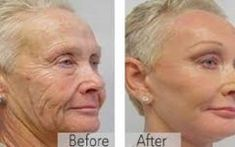 Skin Tightening Better than botox A mother reveals the anti-aging trick of the stars! Viewable results in 14 days Anti Aging Tips, Best Anti Aging, Anti Aging Skin Care, Creme Anti Age, Anti Aging Cream, Organic Skin Care, Natural Skin Care, Prevent Wrinkles, Skin Tips
