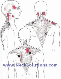 muscles affecting neck  shoulder pain       Yep- this is true! Been dealing with this stupid neck pain for a year in August! I swear were the red is at I have at least 1 knot or 1 huge one!