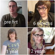 r/transtimelines - Just hit my 2 year mark a few days ago. Figured I'd post a timeline :) Mtf Hrt, Mtf Before And After, Mtf Transformation, Mtf Transition, Lgbt Love, Ftm, Transgender, Timeline, Gorgeous Women