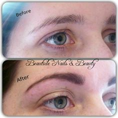 Before & After Of Marvelbrow