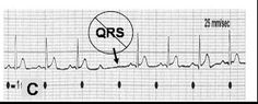 GREAT - EKG MADE EASY ➡ These variations are divided up into 3 groups to make it easier to understand: Bradyarrhythmias (abnormal rhythms with rate usually below 60), Tachyarrhythmias (abnormal rhythms with rate usually above 100 bpm), & Dysrhythmias (alterations to the normal sinus rhythm pattern).