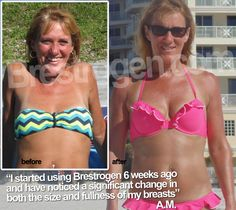 Brestrogen-before-after-small