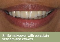 Dental implants dentist London