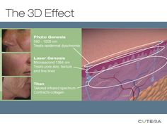 """3D Facial Rejuvenation does it all w/o downtime! #sholarcenter  Click thru to website and list the three things it does for your skin:  1)               2)             3)  (#3 Go to """"Why You Should Be Getting Facials"""")"""