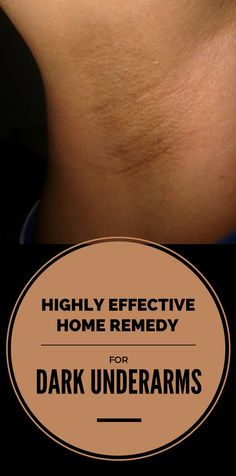 Highly Effective Home Remedy for Dark Underarms