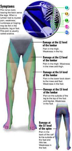 Lumbar Radiculopathy (Sciatica) Sciatic Pain, Sciatic Nerve, Nerve Pain, Sciatica Relief, Chronic Sciatica, Sciatica Massage, Sciatica Symptoms, Chiropractic Treatment, Massage Therapy