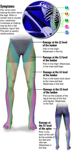 Lumbar Radiculopathy (Sciatica): Overview. ohhhh yes, I get mine on the side of it so this EXPLAINS it!