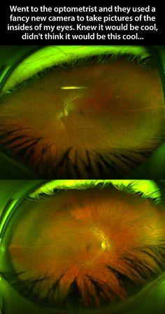 A look inside the eyes…