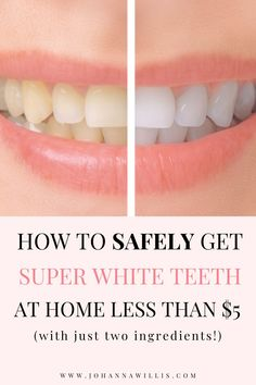 Teeth Whitening Methods, Natural Teeth Whitening, White Teeth Tips, Get Whiter Teeth, Clean Teeth, Teeth Whiting At Home, Crest Whitening, Healthy Teeth, Stay Healthy