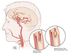 Фибро интимальная гиперплазия сонных артерий интересная