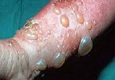 Spinga un rimedio efficace da un fungo di unghie