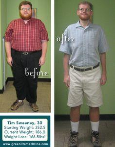 Weight loss surgery green bay wi