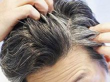 Grey hair ayurveda remedy, premature graying causes, premature graying, natural ways to dye gray hair,natural,treatment,