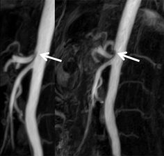 Figure MR-Angiography in CGCS. Clearly visible increase of celiac trunk compression (arrows) from inspiration (left) to expiration (right). Celiac Artery, Arrows, Inspiration, Biblical Inspiration, Arrow, Inspirational, Inhalation