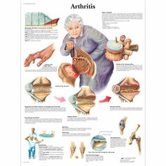 This anatomical chart is full of information about arthritis. The chart tells what arthritis is, effects, treatments, and arthritis therapy. Occupational Therapy, Physical Therapy, Health Chart, Nursing Tips, Medical Information, Anatomy And Physiology, Rheumatoid Arthritis, Health Remedies, Pain Relief