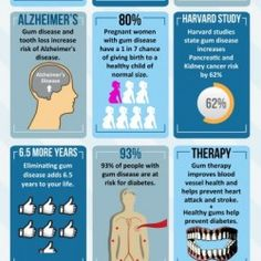 This infographic is from Atlanta Dental Spa