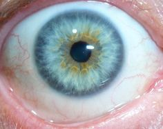 Iridology Right eyeThis shows 2 pointing blood vessels on the left side pointing to about 8:55 which is the right breast. This person has pain and lumps in the right breast. This may be cancer or precancerous or just toxic lumps with pain.The outer edge around the eye is the skin layer and is dark blue meaning it has toxin in that needs to sweated it out.Also the next layer in from the edge is the lymph nodes. the left side of this eye show many lymph nodes very dark blue meaning they have…