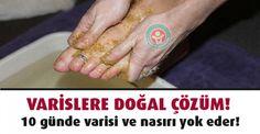 Bu doğal karışımı ayaklarınıza sürün, 10 günde varisli damarlardan, nasır ve topuk çatlaklarından kurtulun.