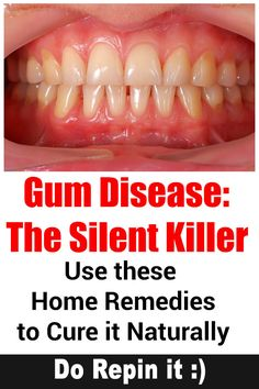 Learn more about signs, prevention and treatment for Gum Disease (Gingivitis & Periodontitis). Also find 8 home remedies for Periodontal (Gum) Disease. Gum Health, Teeth Health, Oral Health, Dental Health, Health And Wellness, Dental Care, Dental Hygienist, Healthy Teeth, Health Facts
