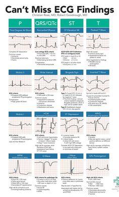 Can't Miss ECG Findings Cards for the Emergency Medicine Provider – StudyPK – Trend Medical Cardiac Nursing, Nursing Mnemonics, Nursing Degree, Nursing School Notes, Medical School, Nursing Schools, Medical Students, Nursing Students, Rn School