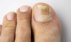 Remedies For Toenail Fungus onychomycosis with fungal nail infection - Fight toenail fungus at its source with these six simple toenail fungus home remedies. Nail fungus can be embarrassing, so start treating yours today. Toenail Fungus Home Remedies, Toenail Fungus Treatment, Toe Fungus Cure, Fungal Nail Infection, Natural Home Remedies, Natural Healing, Hair And Beauty, Health And Fitness, Fungi