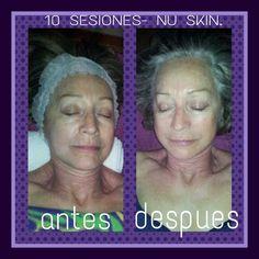 Un tratamiento que hace resplandecer tu rostro..eficaz y económico..informate. silvia : 649213937.