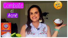 Mascarillas para el acné con Bicarbonato de Sodio | SaMi Beauty TV
