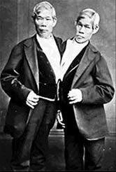 Los dos hermanos que compartieron el mismo cuerpo..increíble historia..leer..