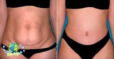 Prepare This Herb for 10 Minutes Use It Only Once a Day and In Only 20 Days All of Your Belly Fat Will Disappear! Lower Belly Fat, Reduce Belly Fat, Lose Belly, Healthy Mummy Smoothie, Stop Acid Reflux, Workout For Flat Stomach, Fat Burning Drinks, Stubborn Belly Fat, Metabolic Diet