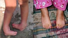 Before and After - The miracle of Ponseti #clubfoot. Miss Dr. Ponseti so much defiantly was a Saint.