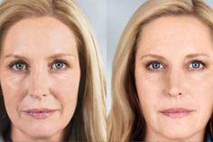Καλύτερη κι από μπότοξ: Η μάσκα που θα σε κάνει να δείχνεις 10 χρόνια νεότερη και φτιάχνεται μόλις με 3 υλικά – Enimerotiko.gr Diet Menu, Food Menu, Acne Cover Up, Laser Skin Care, Beauty Video Ideas, Skin Rash, Skin Care Treatments, Dog Snacks, Beauty Editorial