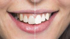 Zahn-Whitening: So kriegen Sie Ihre Zähne wieder Weiß!