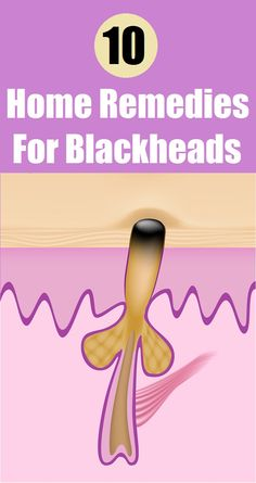 Top 10 Home Remedies for #Blackheads