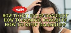How To Get Rid of Dandruff, How to Remove Dandruff, How to Stop Dandruff