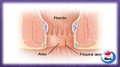 Remedios caseros y naturales para la fisura anal o fisura en el ano
